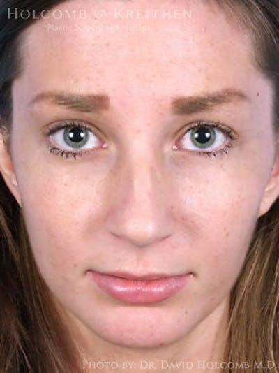 Rhinoplasty Gallery - Patient 6279301 - Image 1