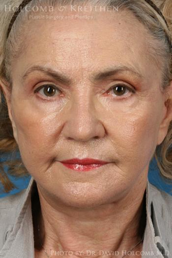 Facelift Gallery - Patient 6279302 - Image 2