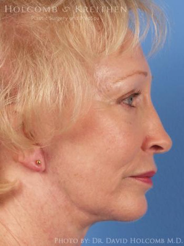 Neck Contouring Gallery - Patient 6279300 - Image 6