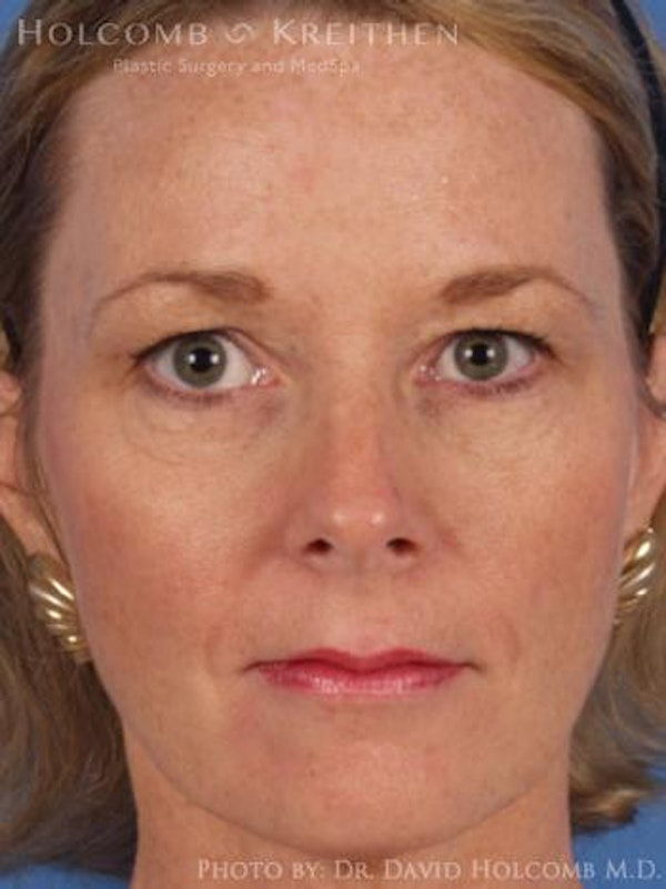 Neck Contouring Gallery - Patient 6279307 - Image 1