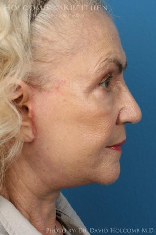 Facelift Gallery - Patient 6279302 - Image 6