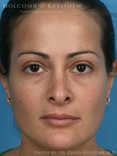 Rhinoplasty Gallery - Patient 6279308 - Image 1
