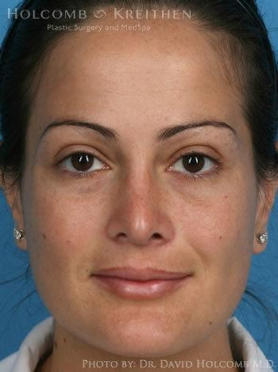 Rhinoplasty Gallery - Patient 6279308 - Image 2