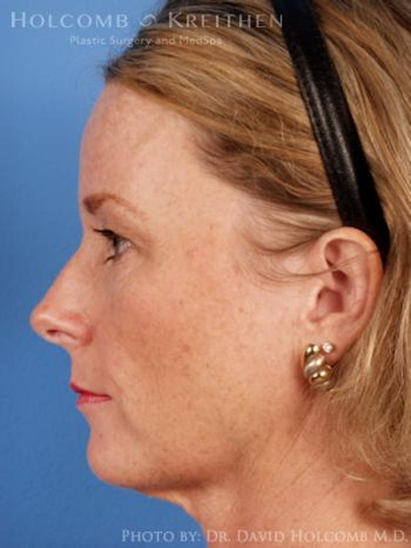 Neck Contouring Gallery - Patient 6279307 - Image 5