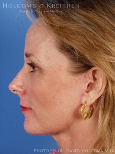 Neck Contouring Gallery - Patient 6279307 - Image 6