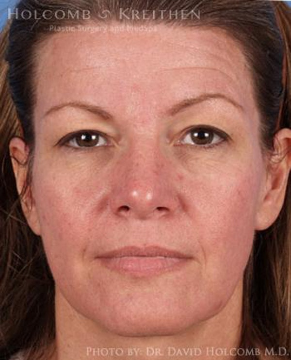 Neck Contouring Gallery - Patient 6279310 - Image 1