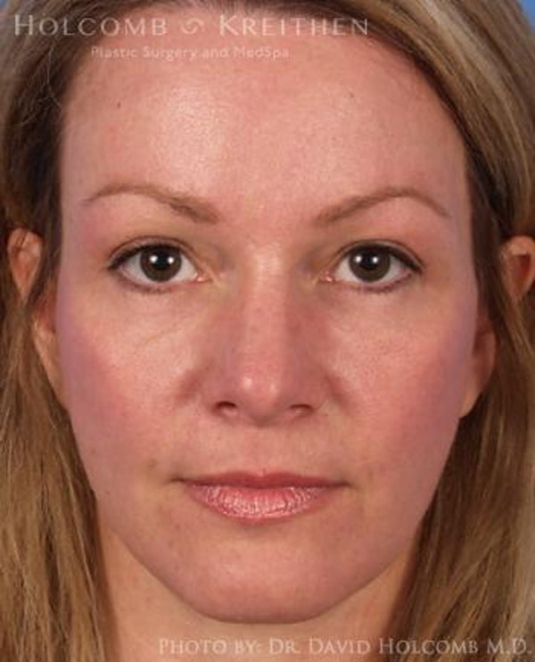 Neck Contouring Gallery - Patient 6279310 - Image 2