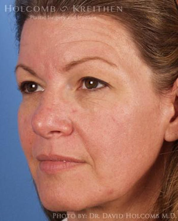 Neck Contouring Gallery - Patient 6279310 - Image 3