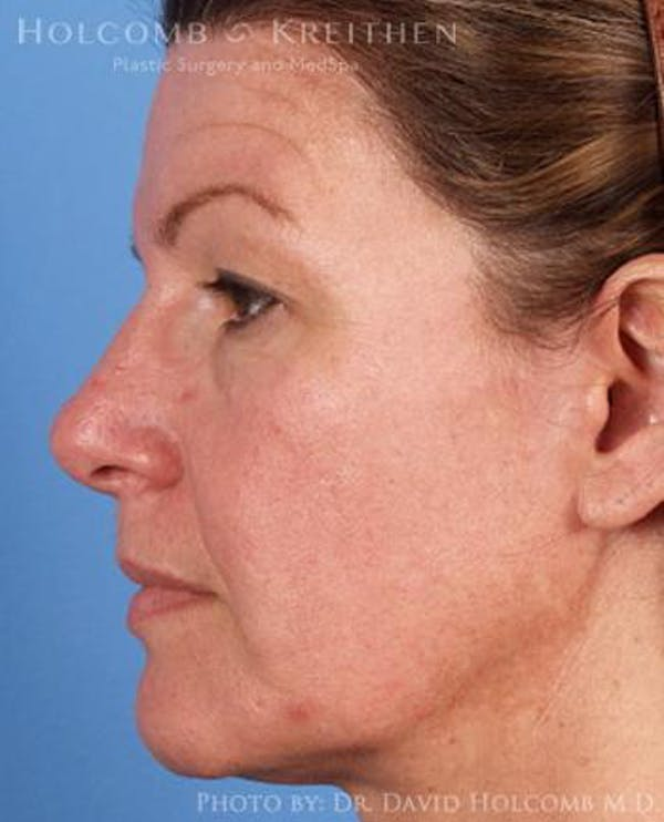 Neck Contouring Gallery - Patient 6279310 - Image 5