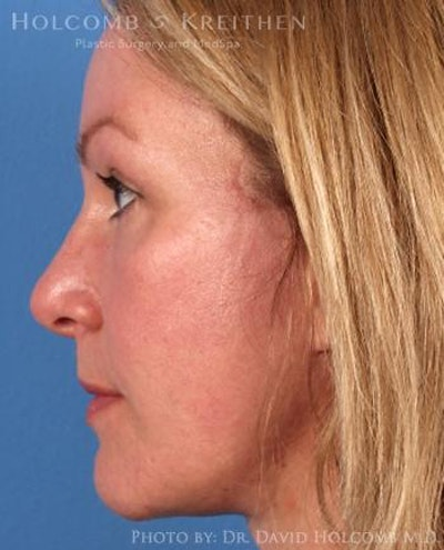Neck Contouring Gallery - Patient 6279310 - Image 6