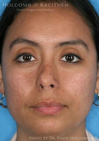 Rhinoplasty Gallery - Patient 6279328 - Image 1