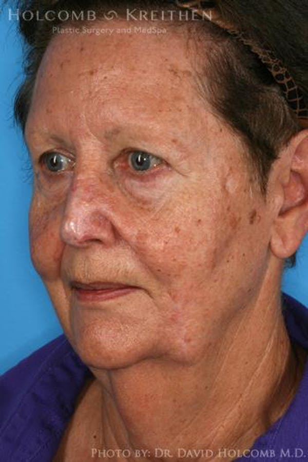 Neck Contouring Gallery - Patient 6279327 - Image 3