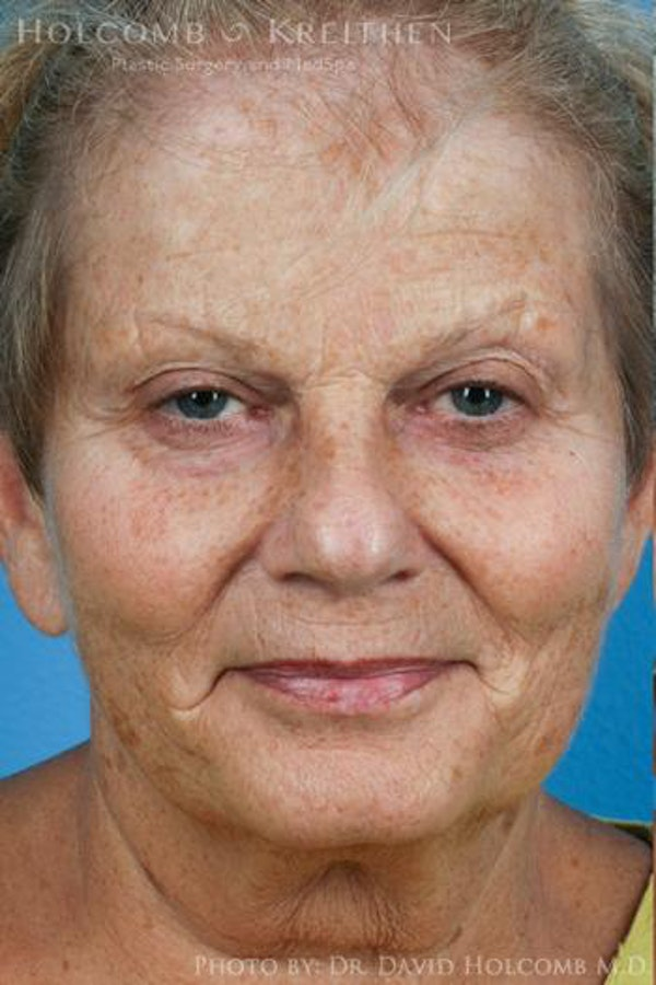 Facelift Gallery - Patient 6279329 - Image 1
