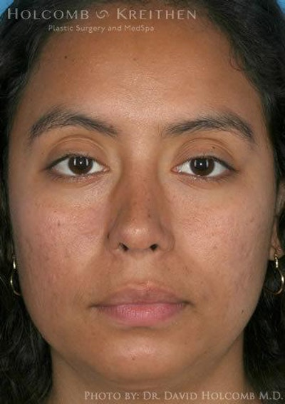 Rhinoplasty Gallery - Patient 6279328 - Image 2