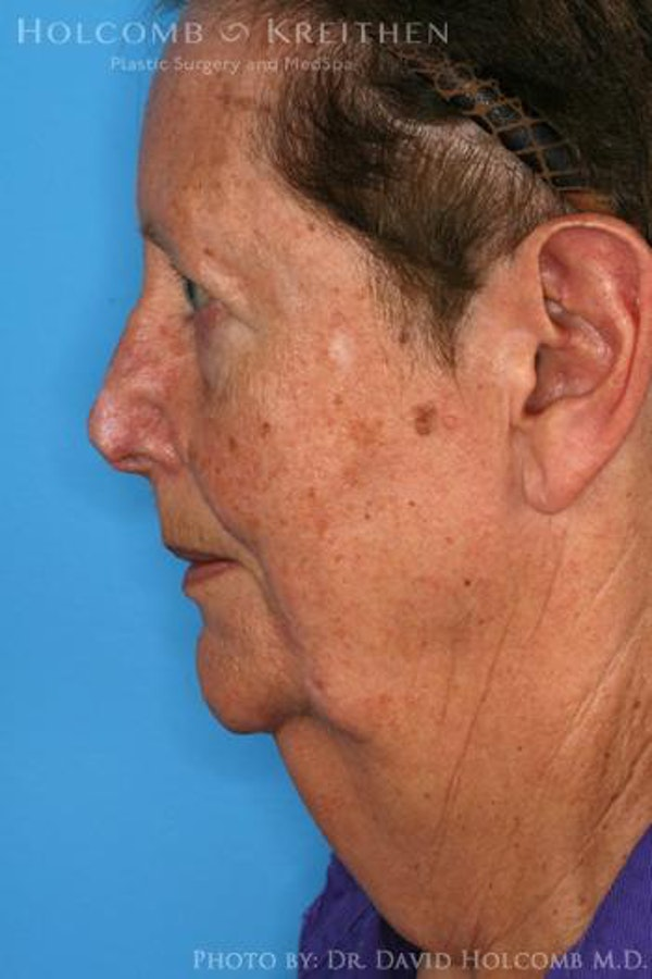 Neck Contouring Gallery - Patient 6279327 - Image 5