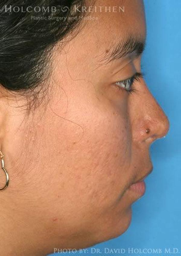 Rhinoplasty Gallery - Patient 6279328 - Image 6