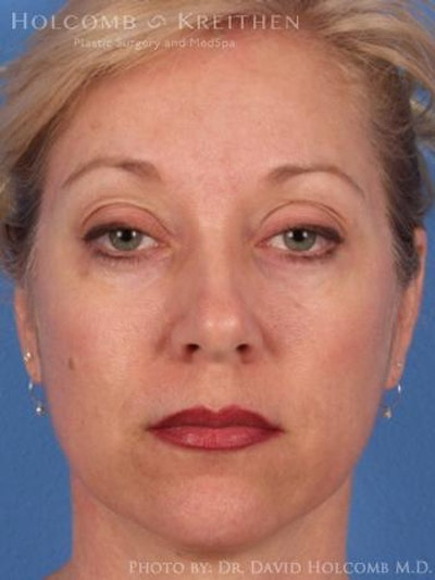 Neck Contouring Gallery - Patient 6279330 - Image 1