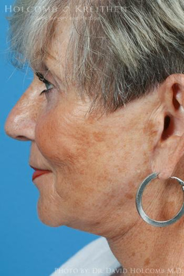 Facelift Gallery - Patient 6279329 - Image 6