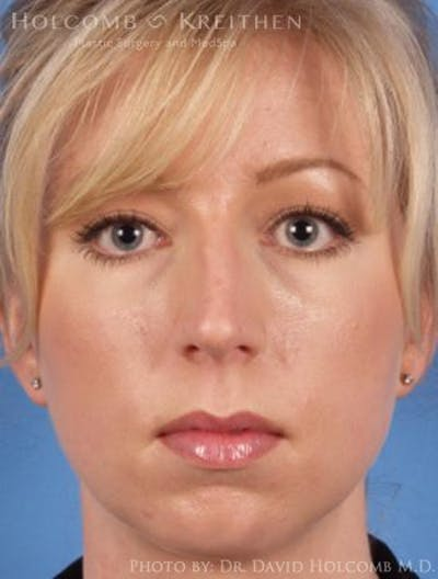 Rhinoplasty Gallery - Patient 6279331 - Image 1