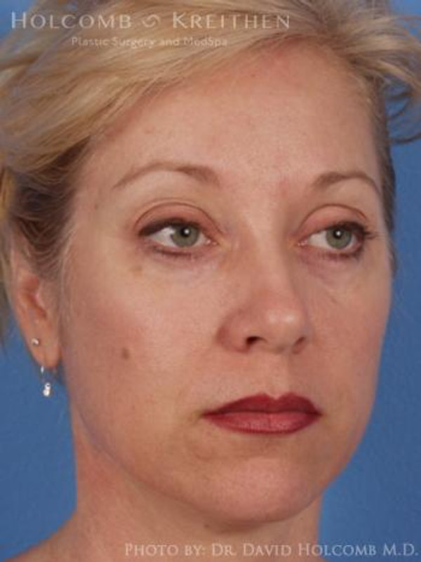 Neck Contouring Gallery - Patient 6279330 - Image 3