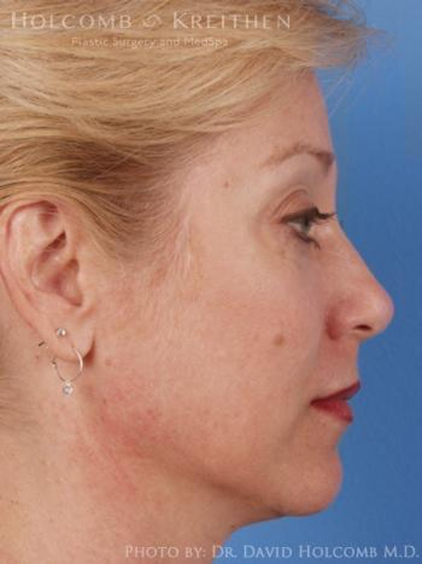 Neck Contouring Gallery - Patient 6279330 - Image 5