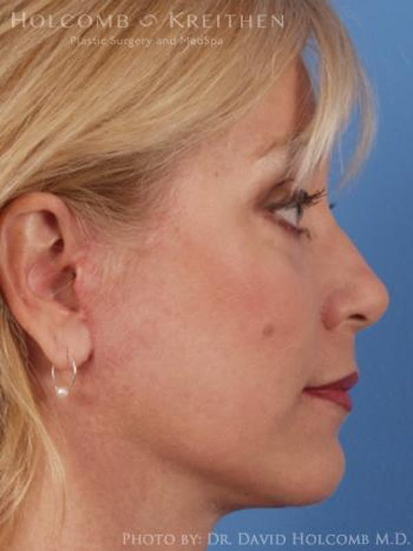 Neck Contouring Gallery - Patient 6279330 - Image 6