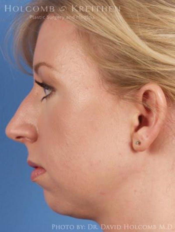 Rhinoplasty Gallery - Patient 6279331 - Image 5