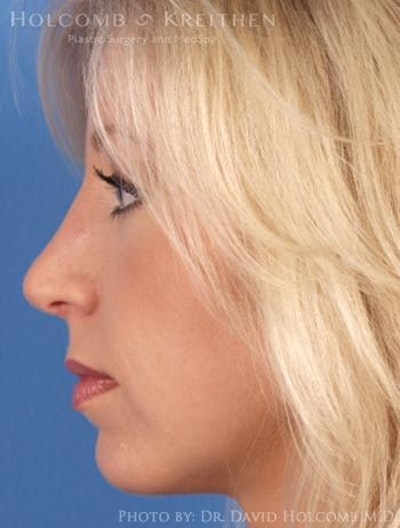 Rhinoplasty Gallery - Patient 6279331 - Image 6