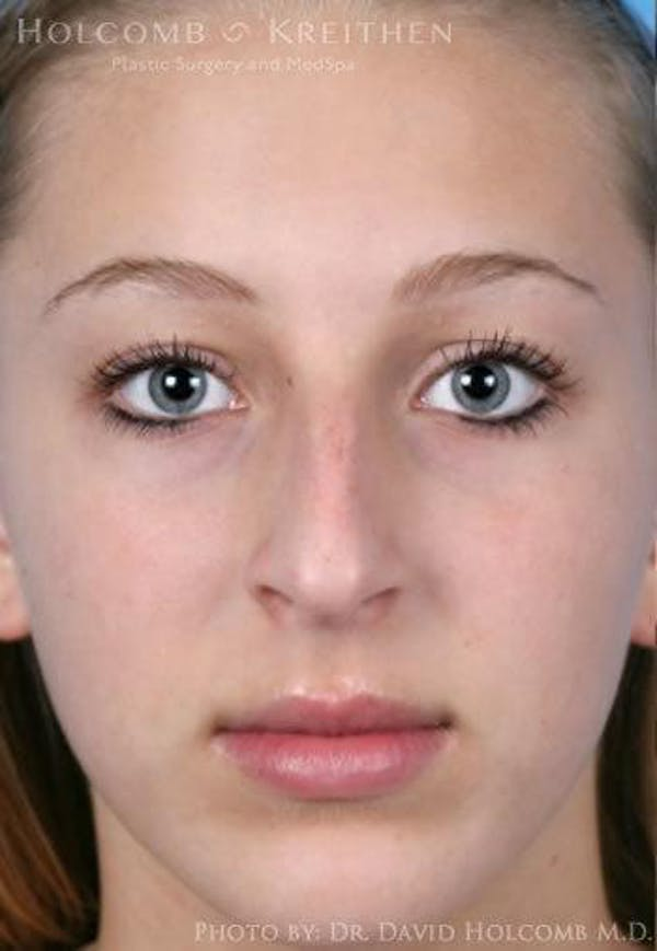 Rhinoplasty Gallery - Patient 6279335 - Image 1
