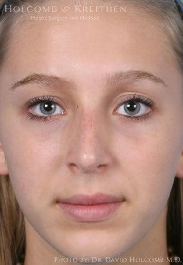 Rhinoplasty Gallery - Patient 6279335 - Image 2