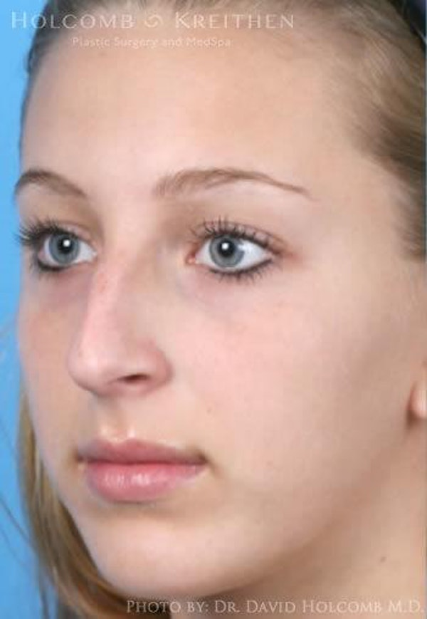 Rhinoplasty Gallery - Patient 6279335 - Image 3