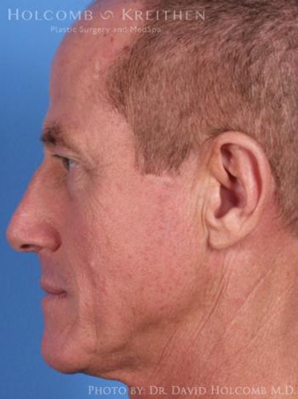 Neck Contouring Gallery - Patient 6279333 - Image 5