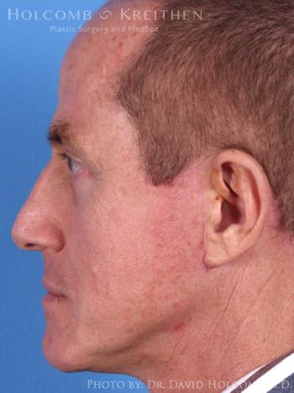 Neck Contouring Gallery - Patient 6279333 - Image 6