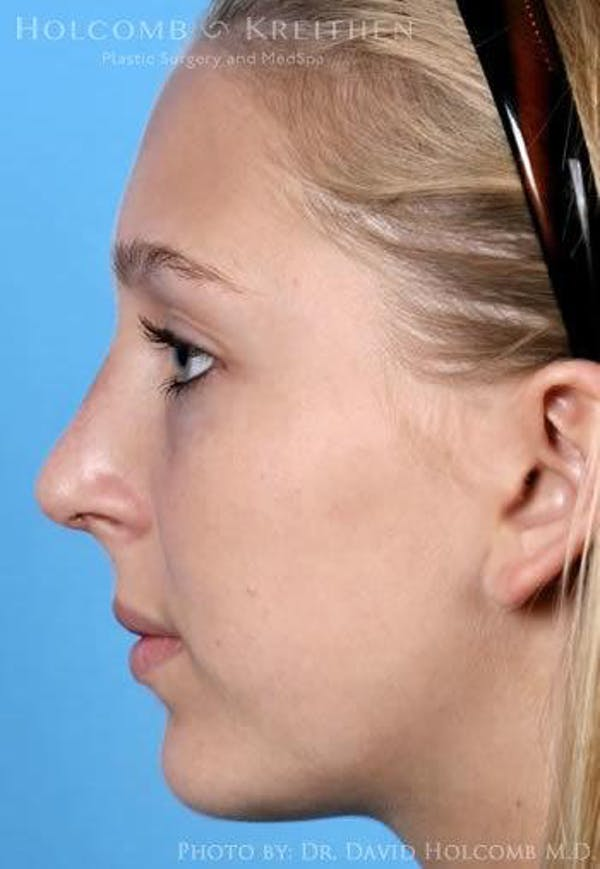 Rhinoplasty Gallery - Patient 6279335 - Image 6