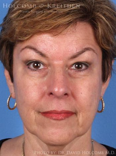 Neck Contouring Gallery - Patient 6279337 - Image 1
