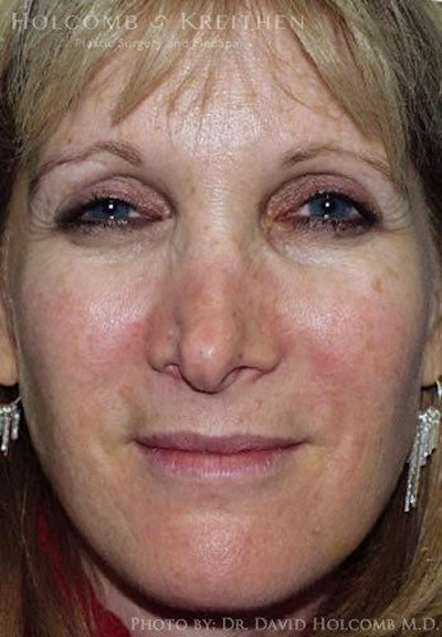 Rhinoplasty Gallery - Patient 6279336 - Image 1