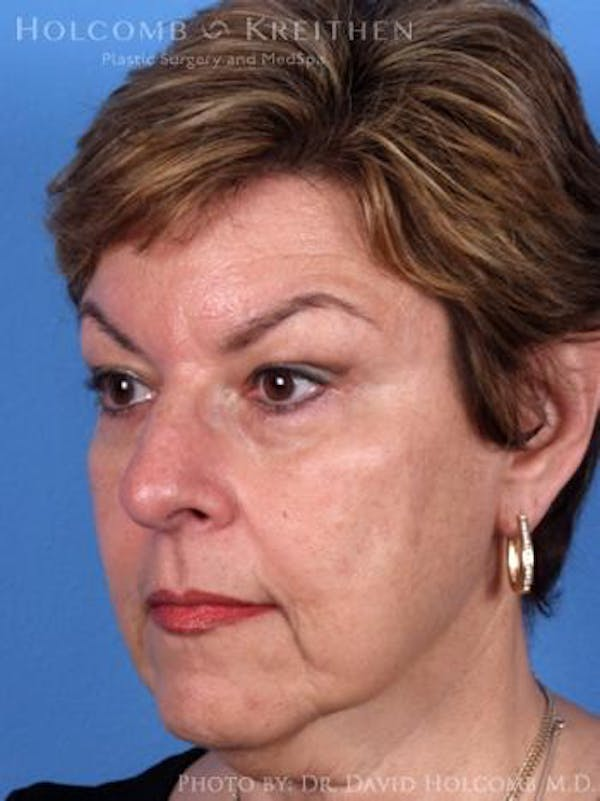 Neck Contouring Gallery - Patient 6279337 - Image 3