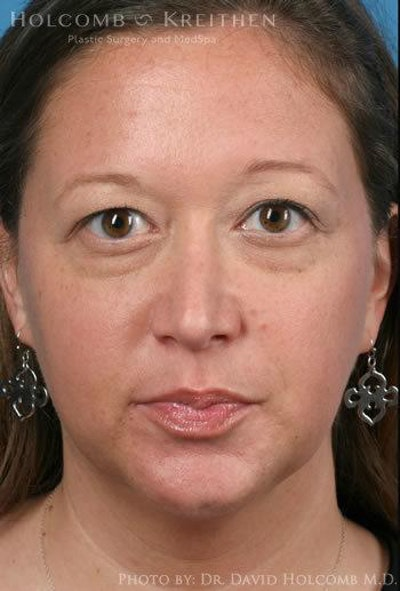 Rhinoplasty Gallery - Patient 6279341 - Image 2