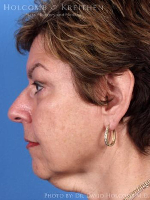 Neck Contouring Gallery - Patient 6279337 - Image 5