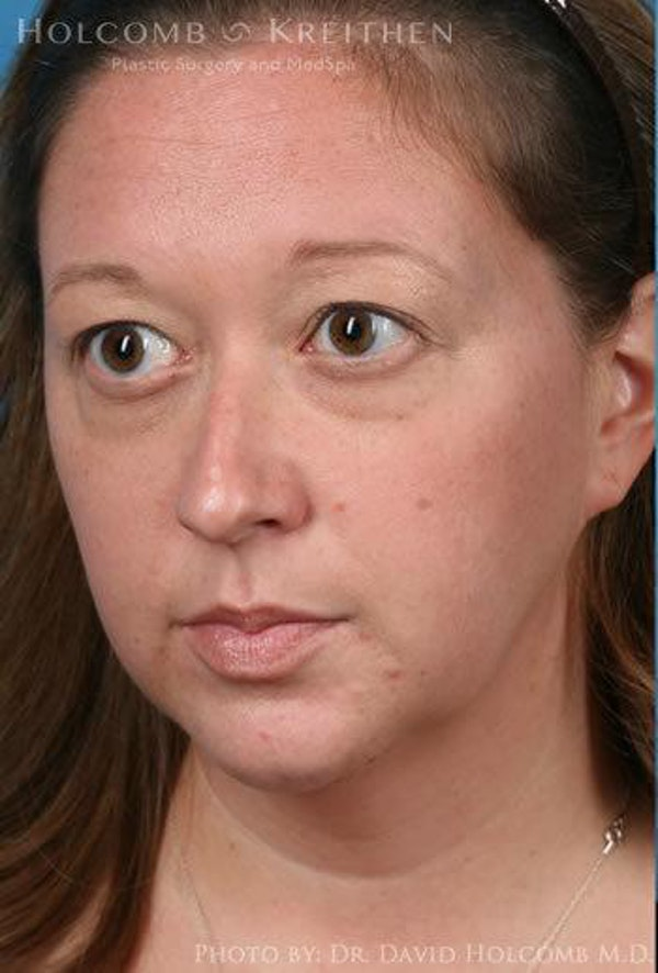 Rhinoplasty Gallery - Patient 6279341 - Image 3