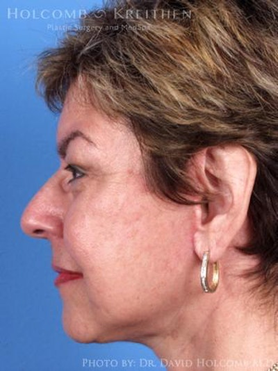 Neck Contouring Gallery - Patient 6279337 - Image 6