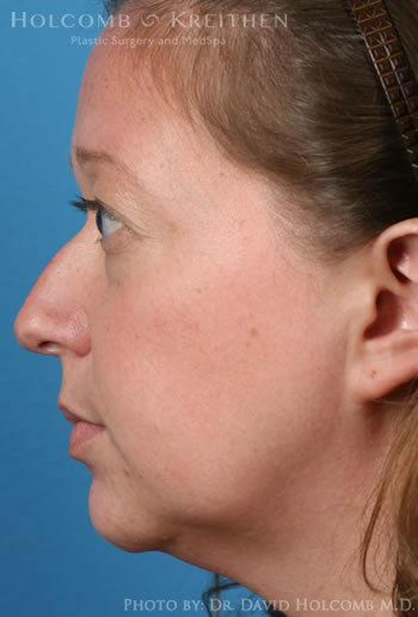 Rhinoplasty Gallery - Patient 6279341 - Image 5