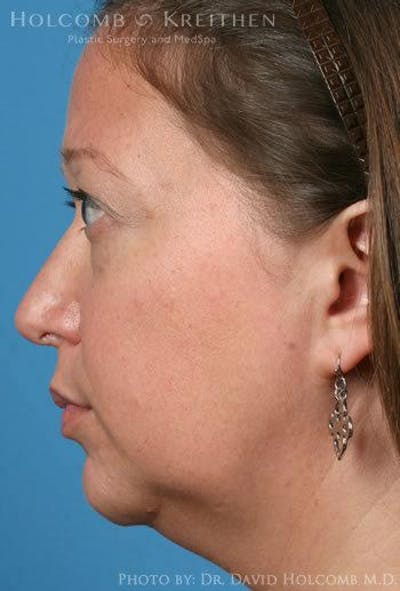 Rhinoplasty Gallery - Patient 6279341 - Image 6