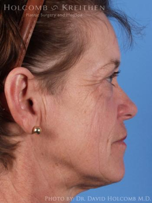 Neck Contouring Gallery - Patient 6279342 - Image 5