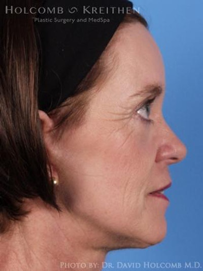 Neck Contouring Gallery - Patient 6279342 - Image 6