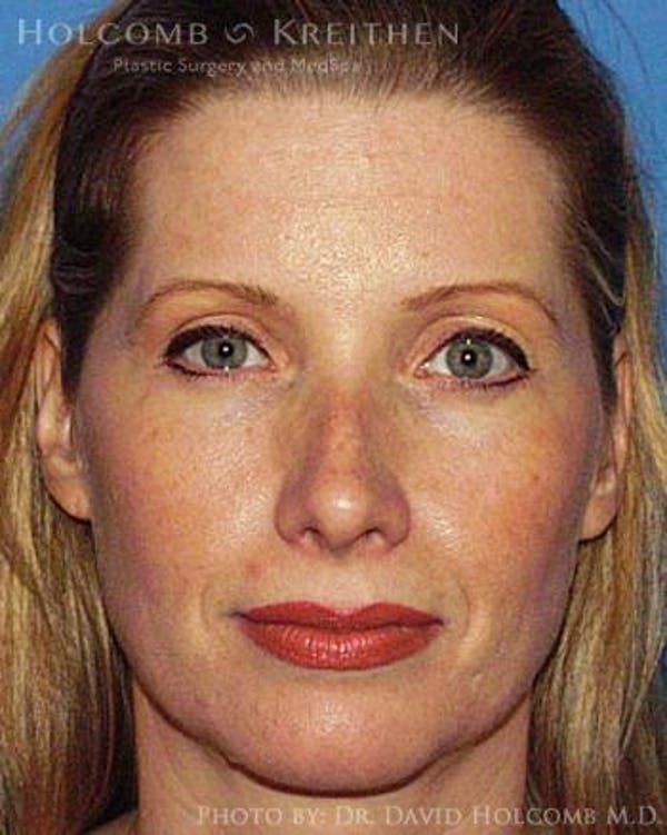 Neck Contouring Gallery - Patient 6279357 - Image 1