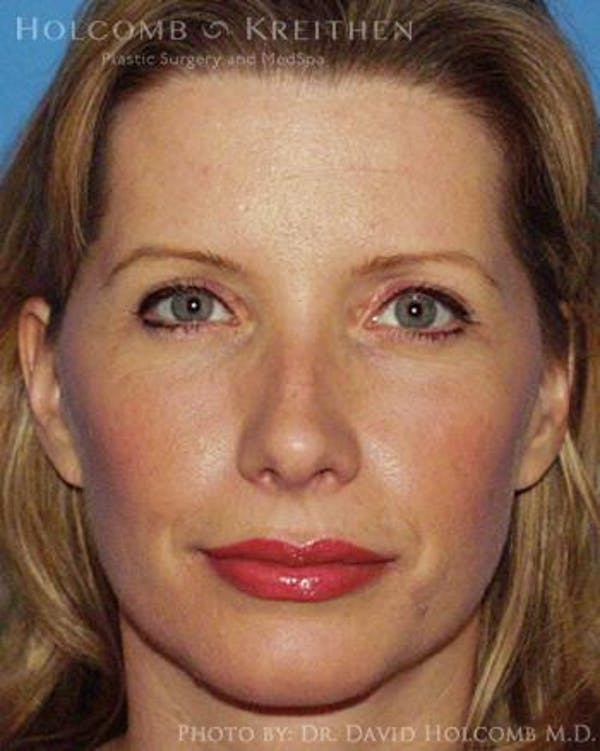 Neck Contouring Gallery - Patient 6279357 - Image 2