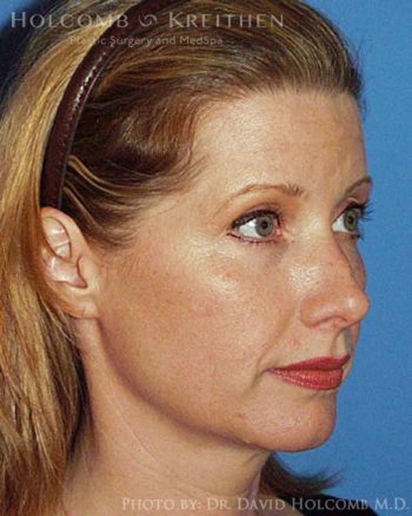 Neck Contouring Gallery - Patient 6279357 - Image 3