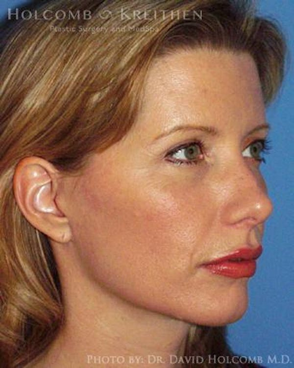 Neck Contouring Gallery - Patient 6279357 - Image 4