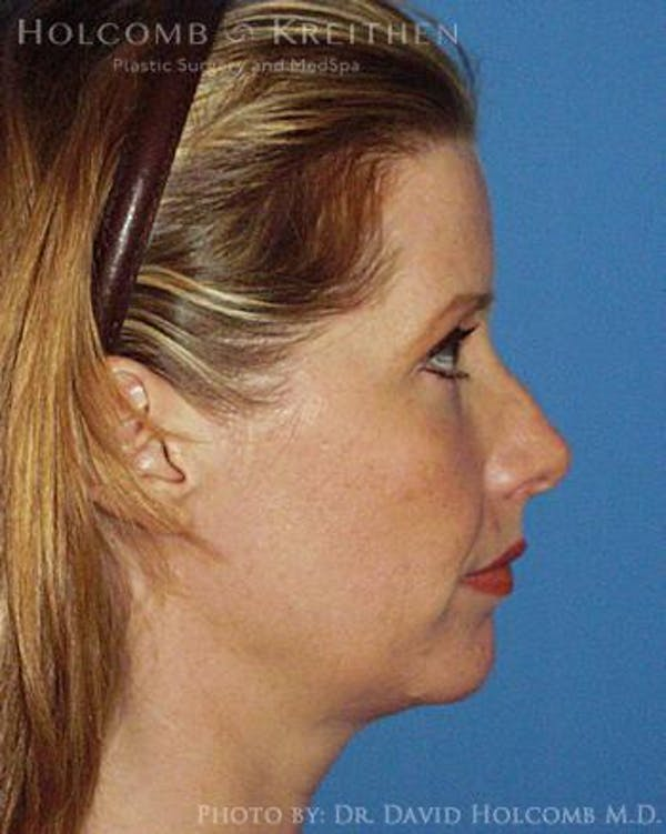 Neck Contouring Gallery - Patient 6279357 - Image 5